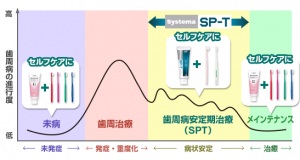 spt_series_sec3_item3_graph